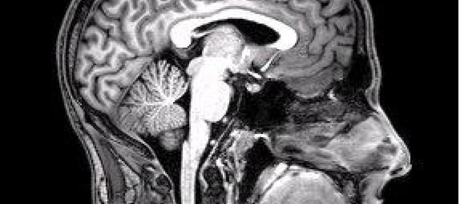 """""""FMRI Brain Scan"""" by DrOONeil"""